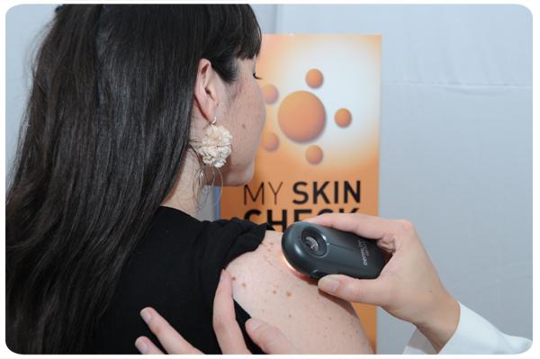 Vuelve My Skin Check, campaña prevencion cáncer de piel 1